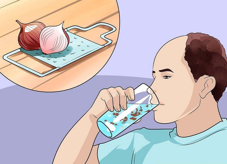 آب پیاز درمان ریزش مو