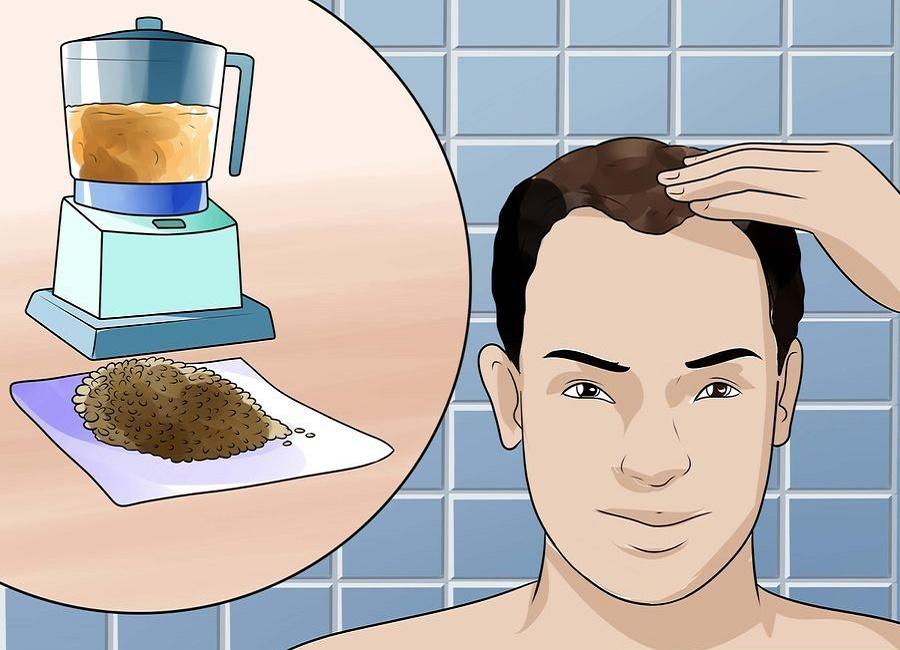 لوسیون گیاهی ریزش مو