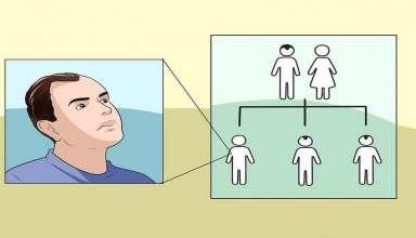 درمان ریزش موی ارثی