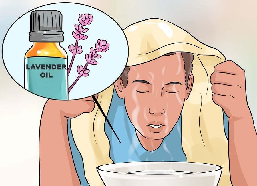 گیاهان طبیعی ضد سردرد