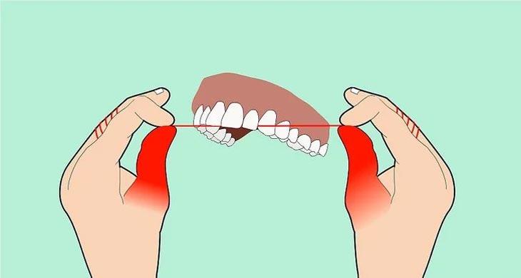 چگونه نخ دندان بکشیم