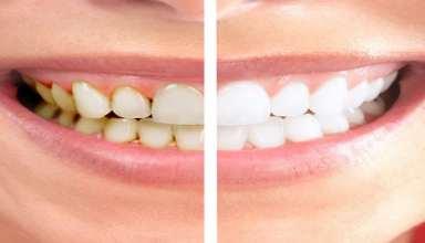جرم گیری اصولی دندان ها