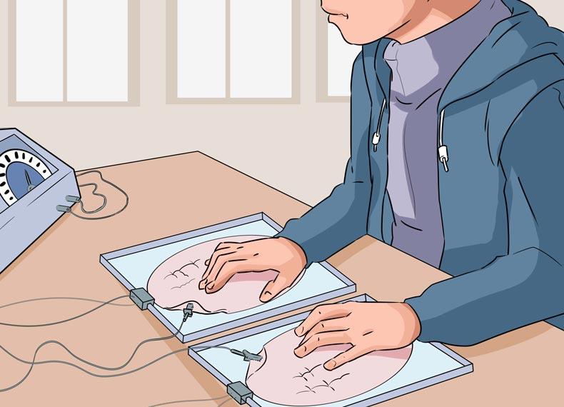 درمان عرق کف دست