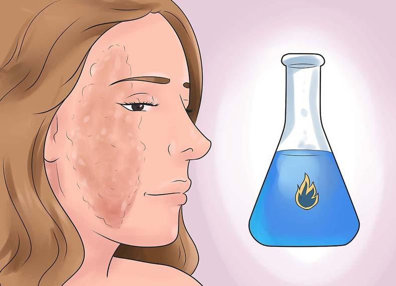 سوختگی پوست با گاز مایع