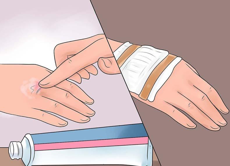 درمان خانگی سوختگی