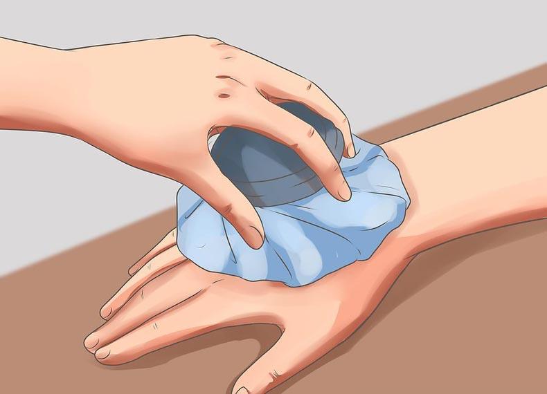درمان ورم نیش پشه