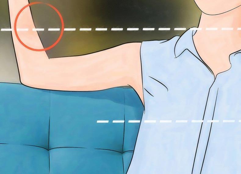 حساسیت به نیش پشه