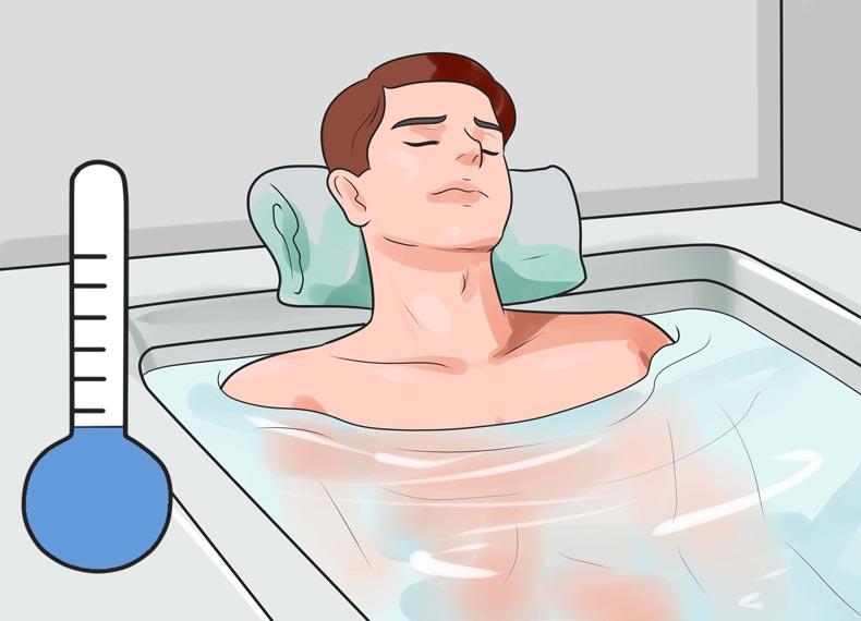 درمان آفتاب سوختگی در خانه