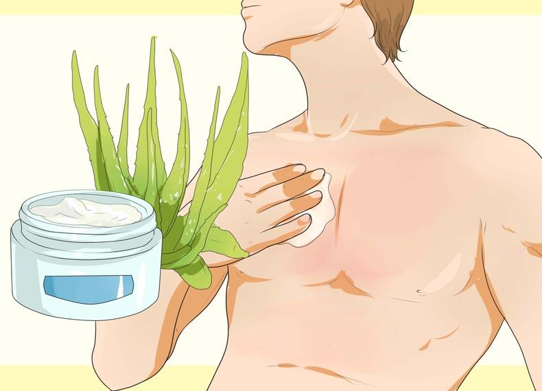 درمان آفتاب سوختگی قدیمی