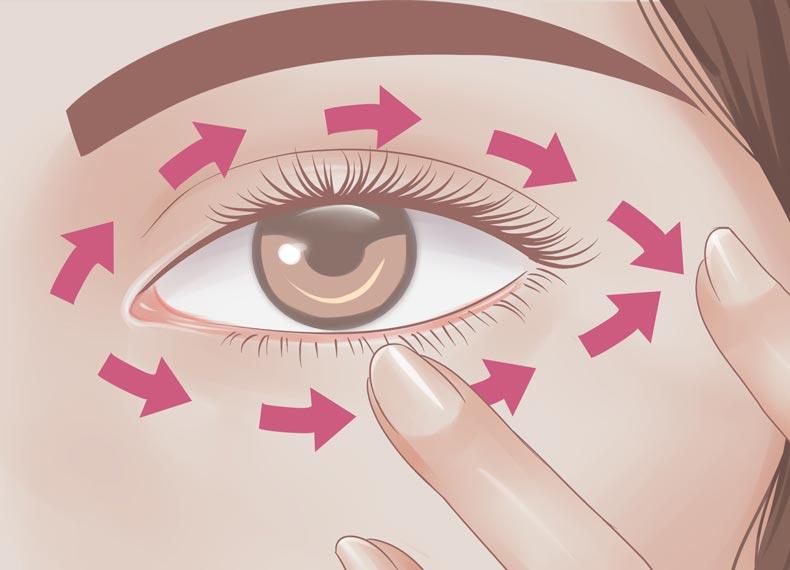 جراحی پف زیر چشم