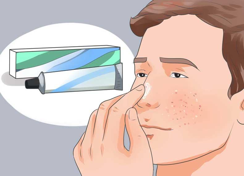 درمان سریع جوش زیر پوستی