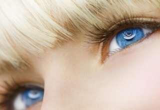 درمان پف زیر چشم
