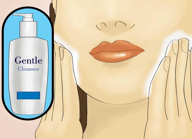 اپیلاسیون حساسیت پوست