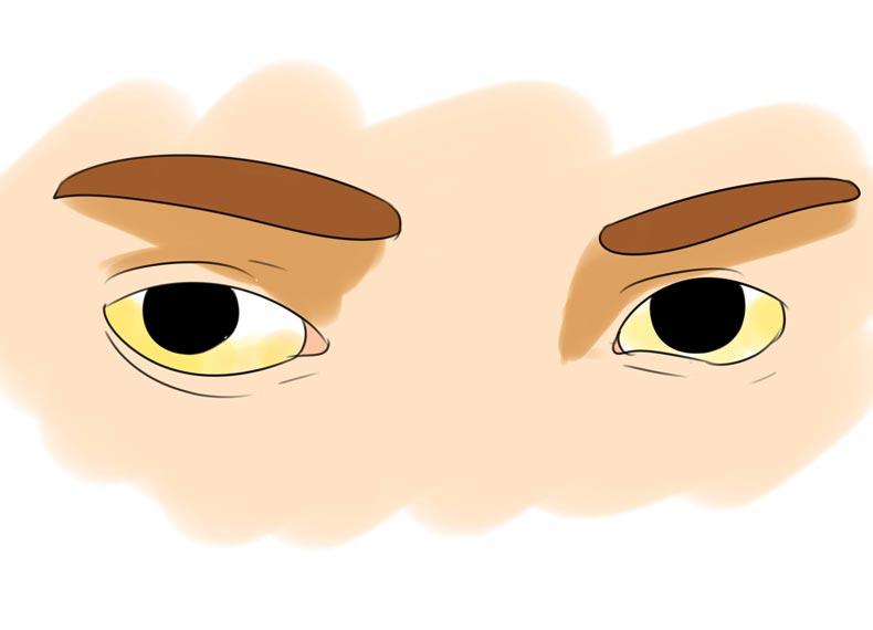 مشکل کبدی و چشم