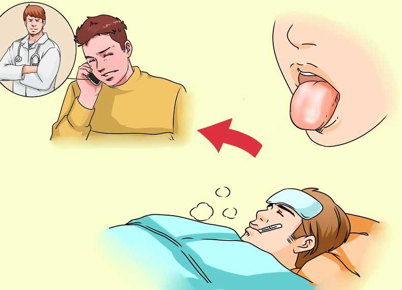 درمان خانگی سفیدی زبان