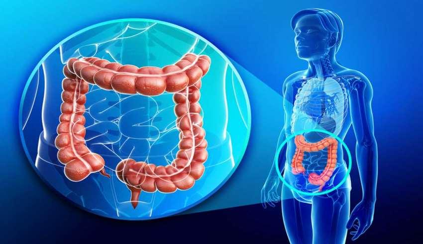 درمان سریع کولیت روده زخمی