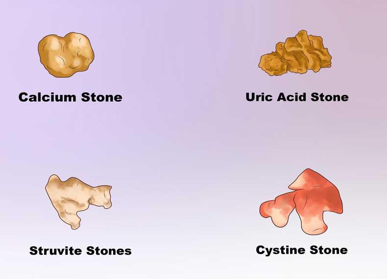انواع سنگ کلیه