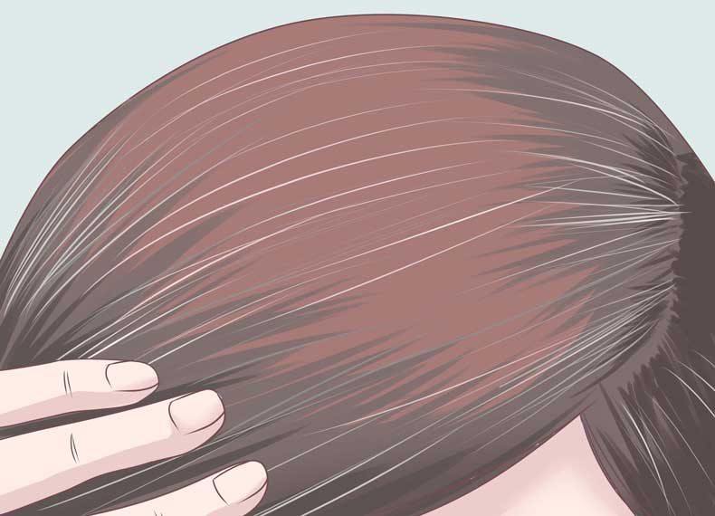 علت و درمان موی سفید