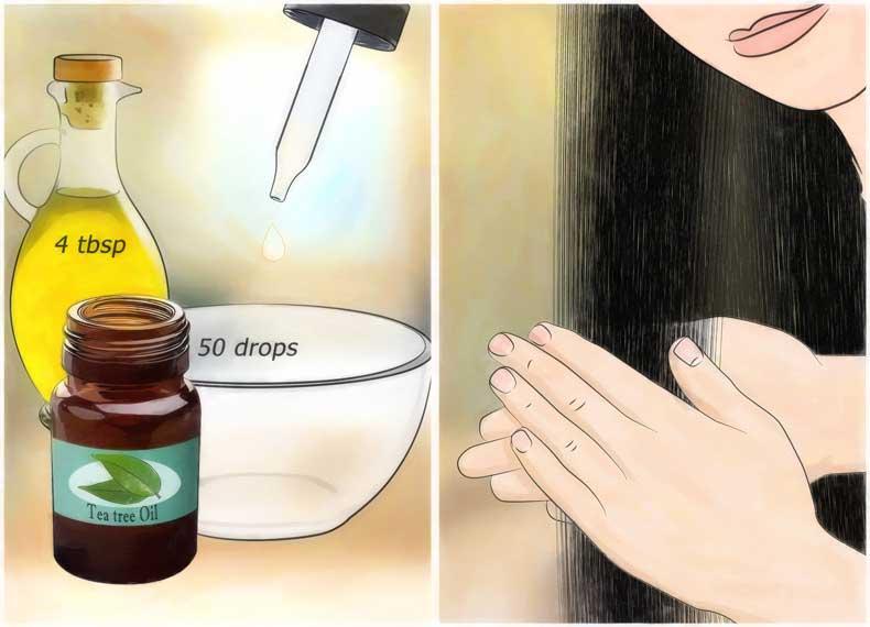 درمان شپش موی سر