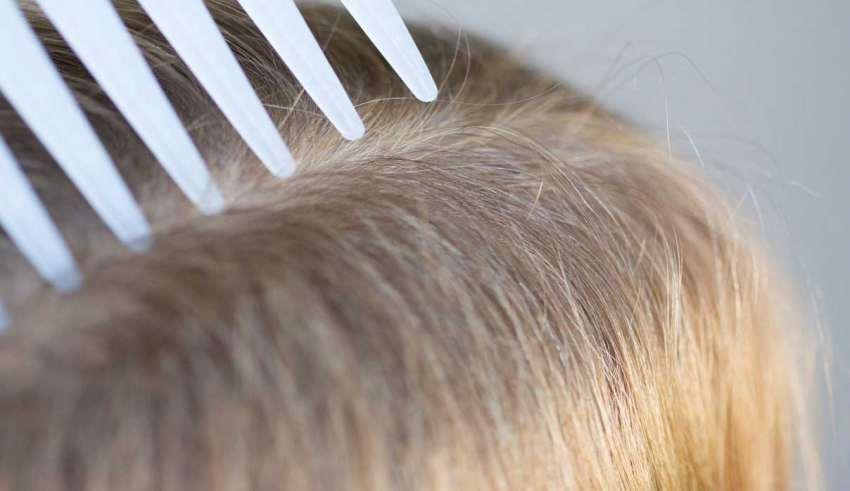 درمان شپش مو