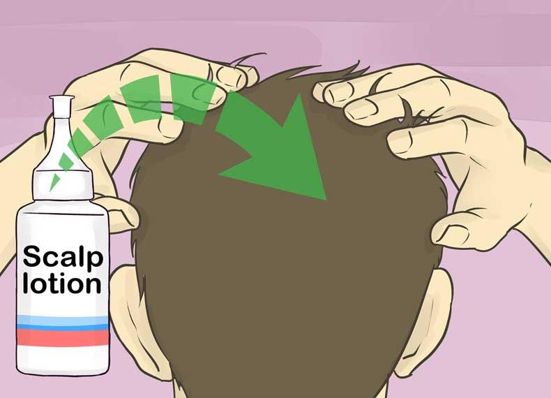 لوسیون برای درمان موی خشک
