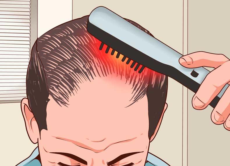شانه لیزری و درمان ریزش مو
