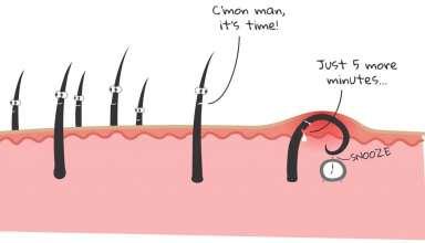 درمان موهای زیرپوستی