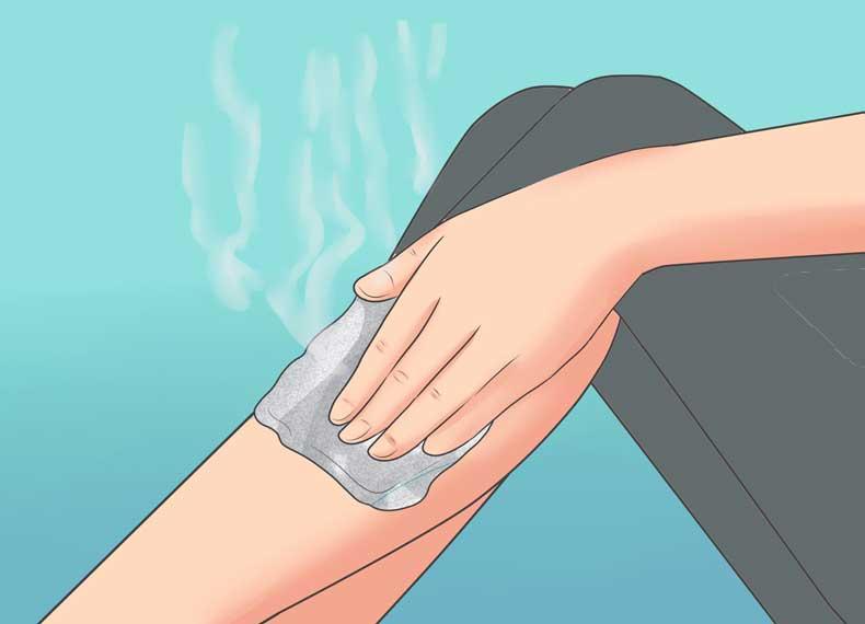 چگونه موی زیرپوستی را درمان کنیم
