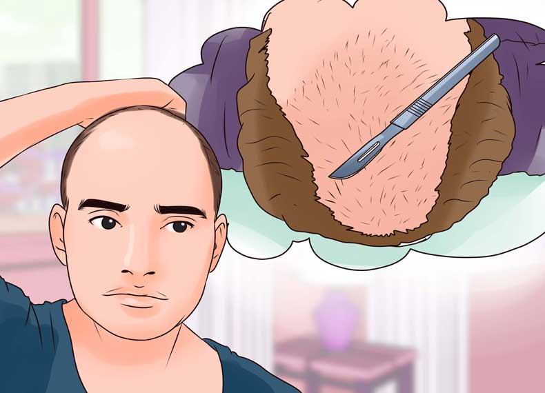 درمان جدید ریزش مو