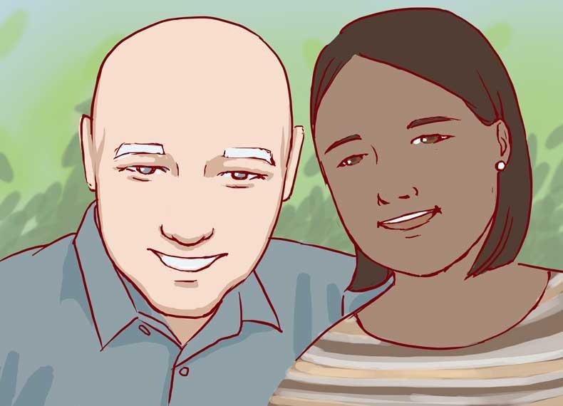 ریزش ارثی موی زنان
