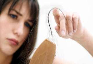 درمان ریزش مو در خانم ها