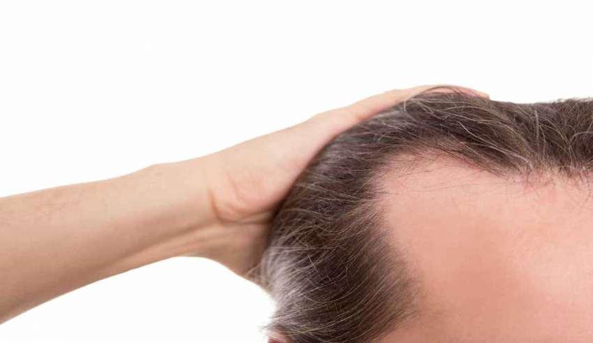 درمان قطعی ریزش مو