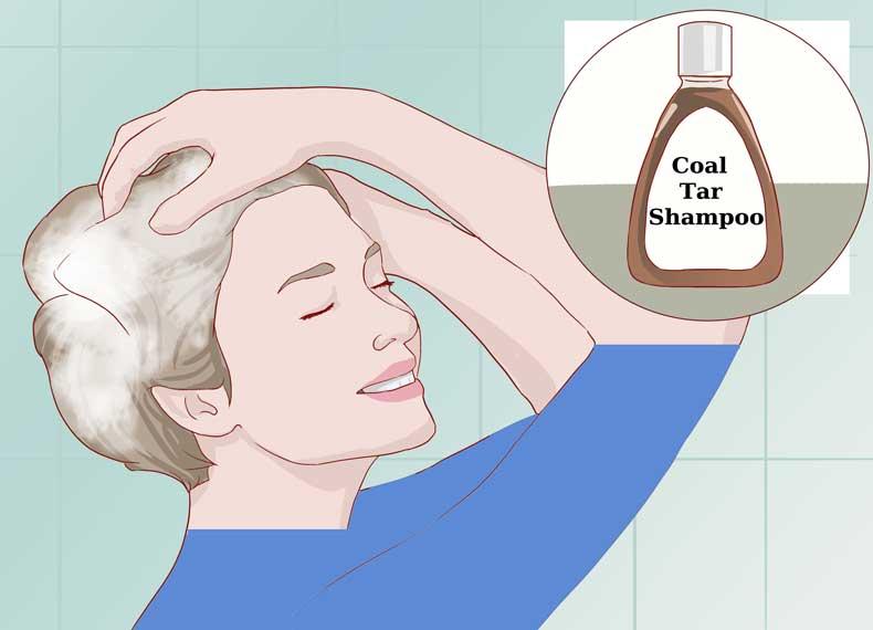 شامپو برای پسوریازیس پوست سر