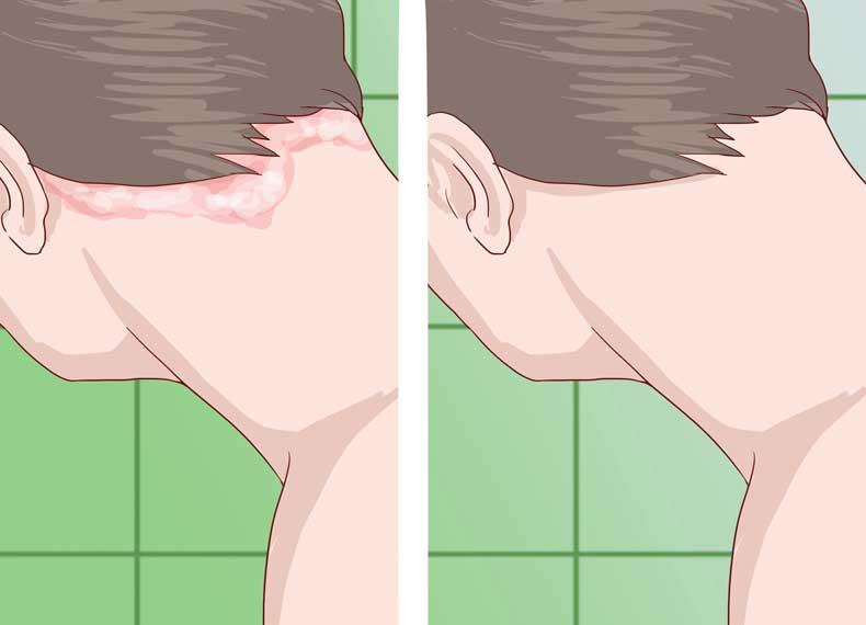 درمان قطعی پسوریازیس پوست سر