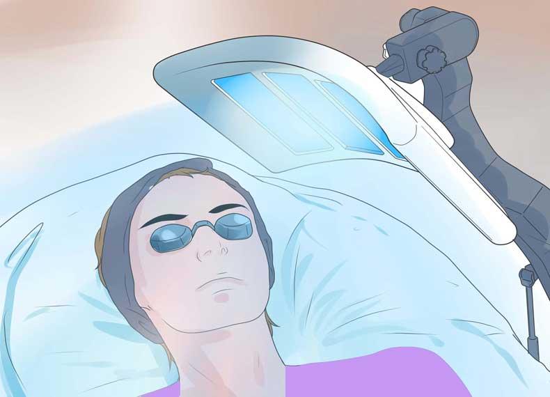 نور درمانی پسوریازیس