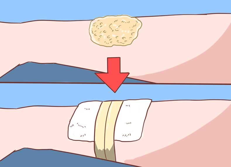 درمان قطعی خارش پوست