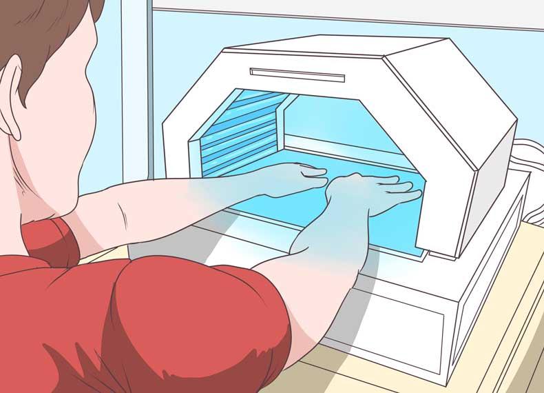 نور درمان یپسوریازیس ناخن
