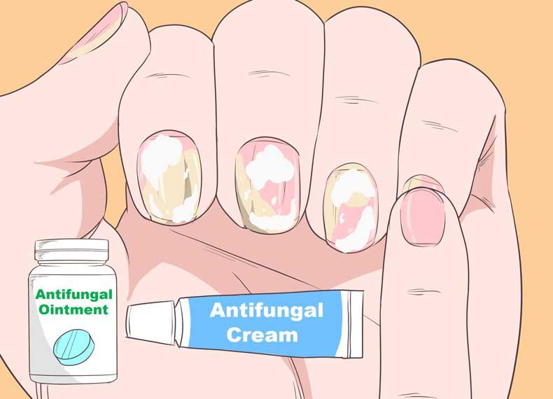 درمان خانگی پسوریازیس ناخن