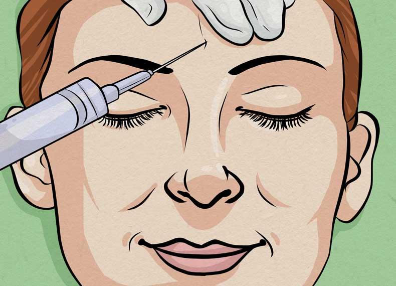 درمان خط اخم با بوتاکس