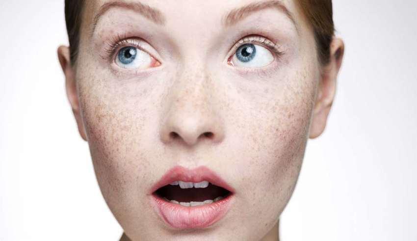 درمان لک پوست