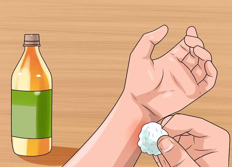 درمان گیاهی کهیر