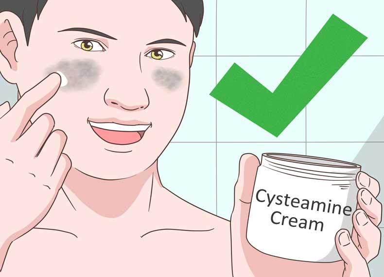 کرم برای درمان لک بارداری