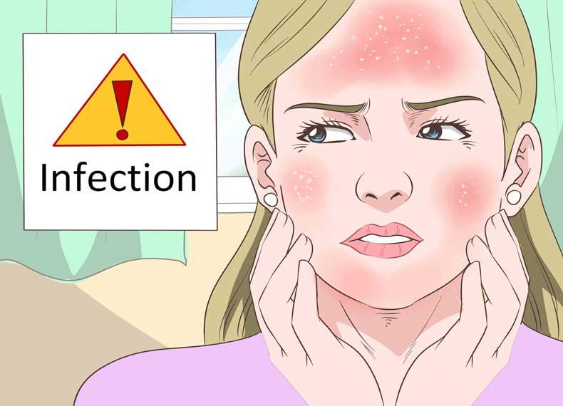 عفونت کردن آفتاب سوختگی
