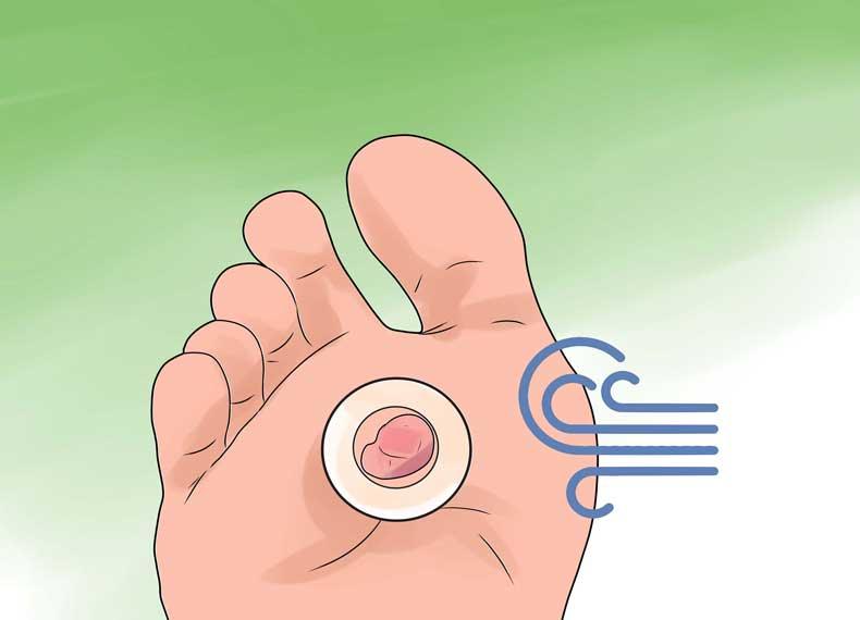 درمان سریع تاول