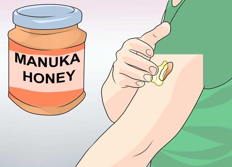 درمان کلوئید با عسل