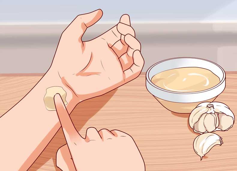 درمان زگیل با سیر
