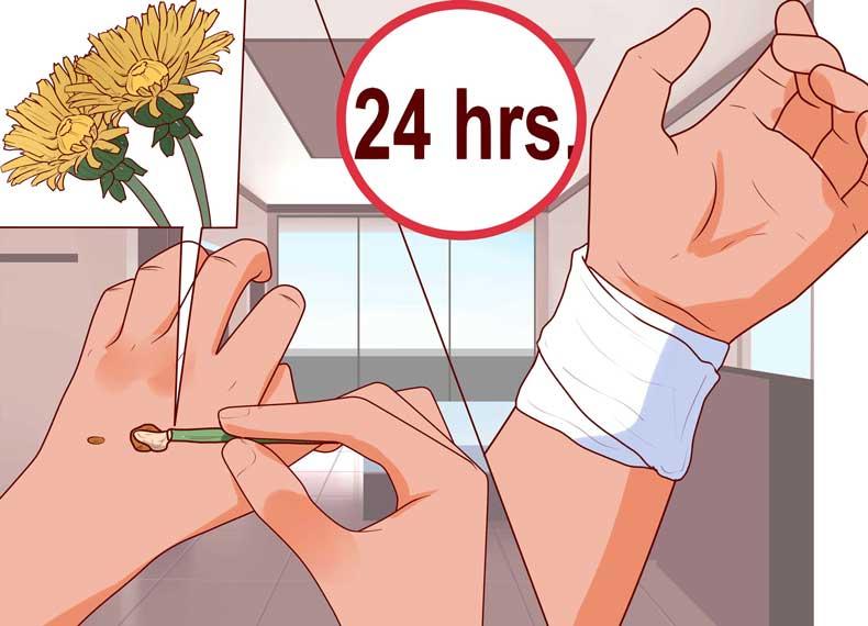 درمان خانگی زگیل