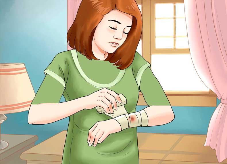 درمان کورک در خانه