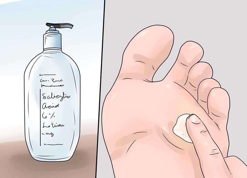 درمان خانگی پینه