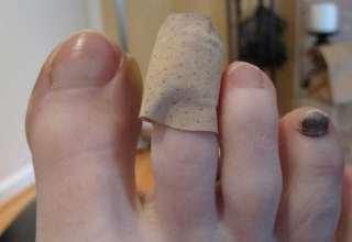 تاول پا